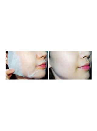 Успокаивающая витаминная тканевая маска с центеллой BanoBagi Vita Genic Hydrating Jelly Mask CICA